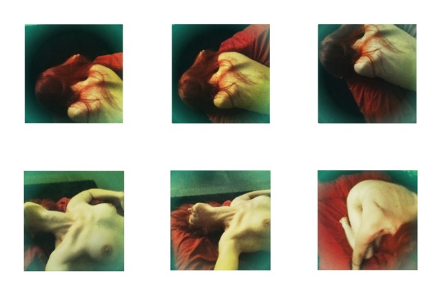 Christiaan-Barnard---Luca Bortolato---970